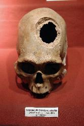 Pre-columbian skull with trephinated hole